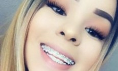 Braces Color That Look Good Together