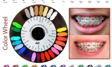 Beautiful Braces Colors – Orthodontics Braces