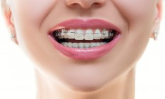 The Best Pretty Braces Color
