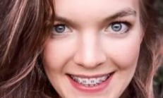 Why Silver Braces Color