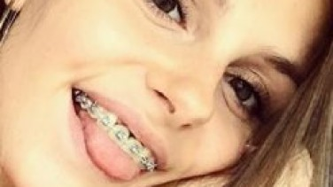 First Day With Braces: Will There Be Pain?