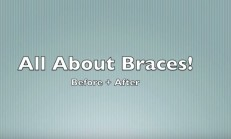 My Braces Experience | EVERYTHING ABOUT BRACES