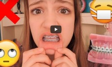 Things People With Braces Will Understand