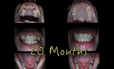Braces Time Lapse | A photo a day | 20 Months