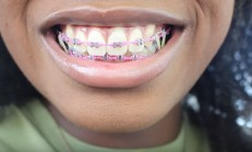 Braces UPDATE | New Wire, New Color, And MORE RUBBER BANDS