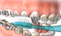 Brushing & Flossing While in Braces