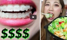 How Much Clear Braces Cost? $15,000 TOTAL?