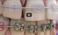Braces – Elements Of The Orthodontics
