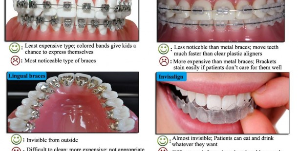 4 Types Of Braces