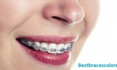Braces Colors For Spring 2020