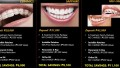 How Much Do Braces Cost in The Philippines ?