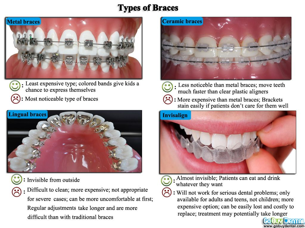 Four-types-of-braces